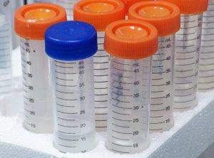 lab-samples-sm
